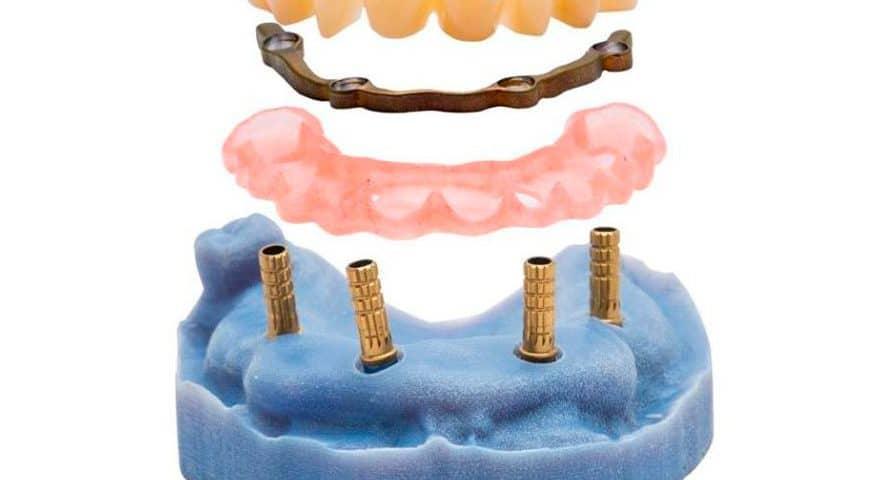 NAVIBOX Il trattamento implantare reso più sicuro