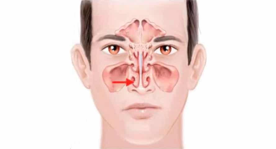 La cattiva o ridotta respirazione nasale