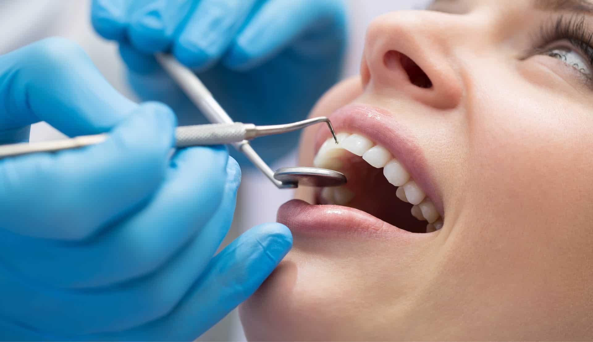 microchirurgia ortodontica siracusa