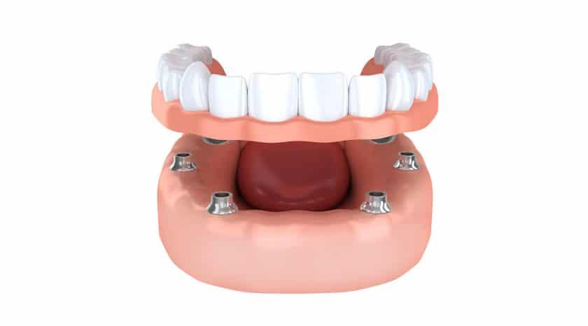 protesi dentarie
