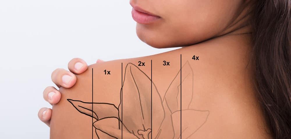 rimozione tatuaggio siracusa