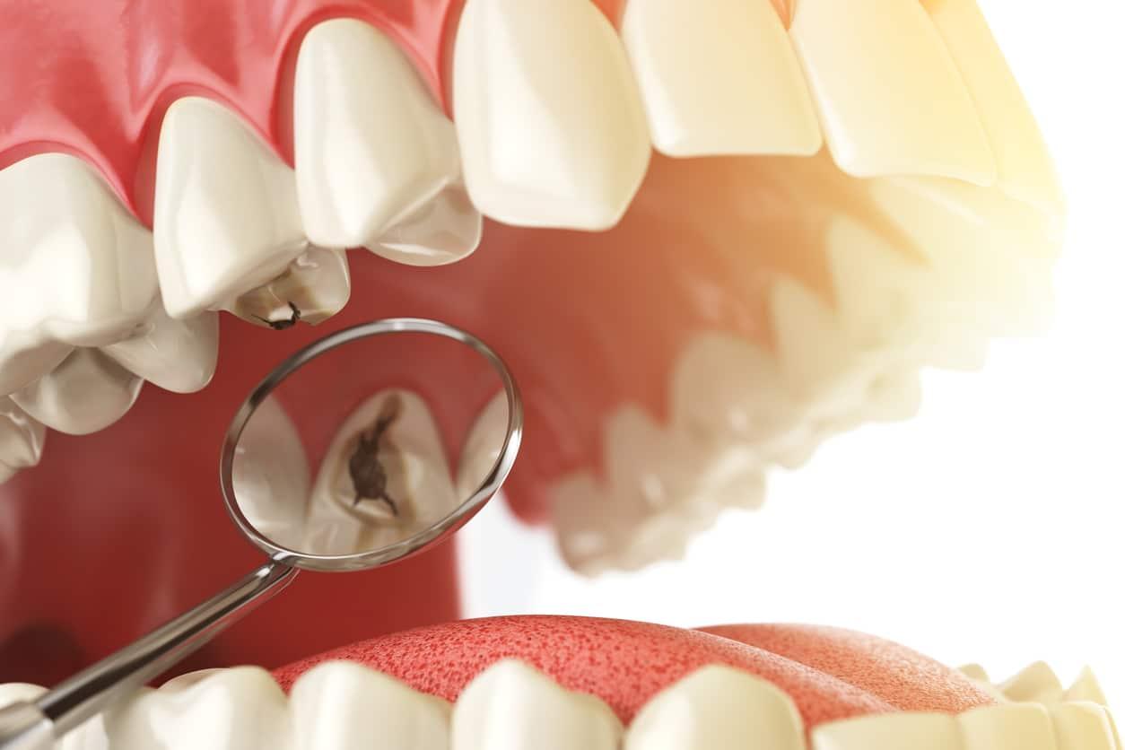 carie dentale siracusa