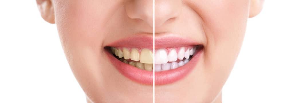 sbiancamento dentale siracusa