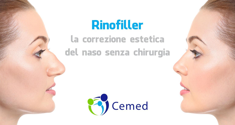 Rinofiller, la correzione estetica del naso senza chirurgia